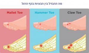 מה ההבדל בעיות כפות רגליים